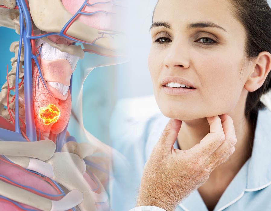 Tumorile cerebrale – simptome, diagnosticare, tratament