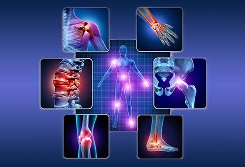 artrita reumatoidă vs lupus