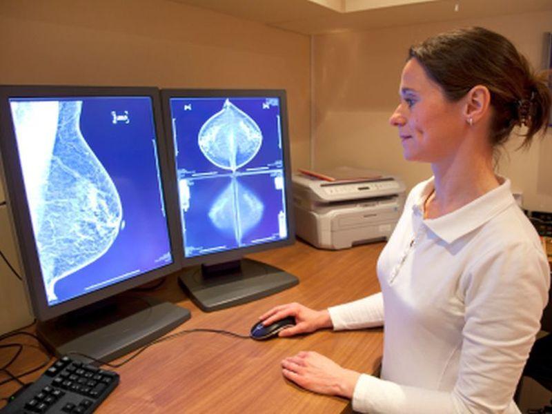 cancerul de sân, cel mai frecvent diagnosticat în 2020