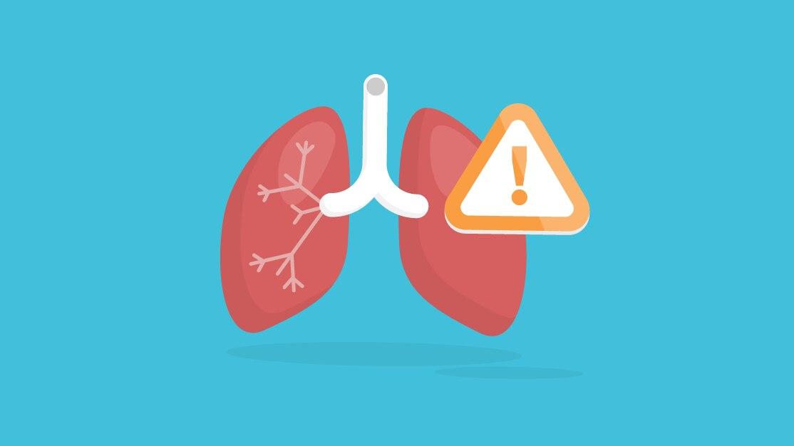 mit versus realitate cancerul pulmonar